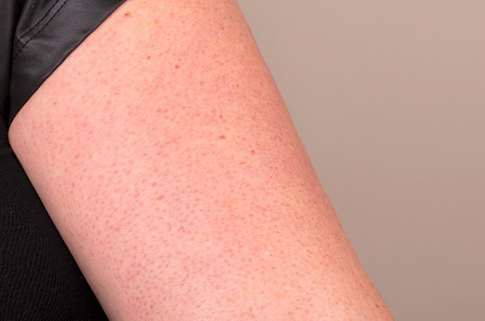 درمان جوش بازو